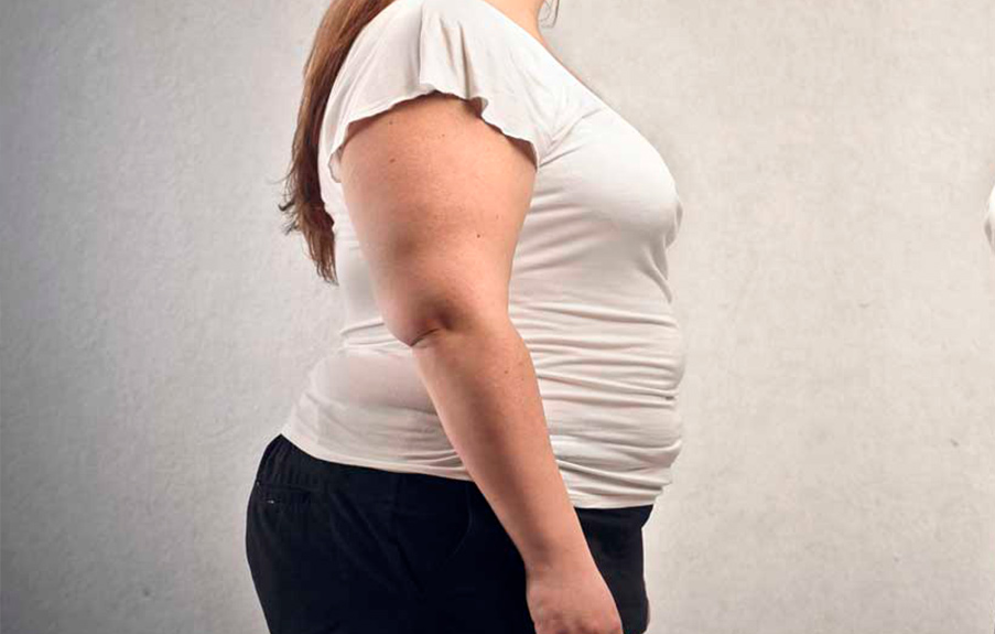 Obesidade: a importância do Endocrinologista
